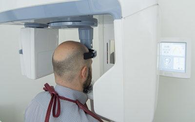 Tomografia Cone Beam e suas aplicações na Odontologia