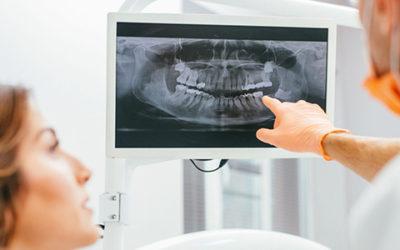 Desvantagens da Radiografia Panorâmica