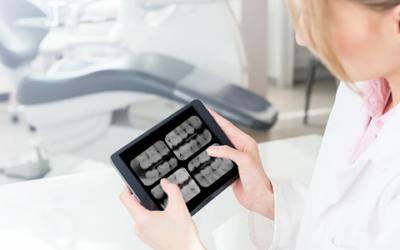 Radiografia Interproximal e Cárie